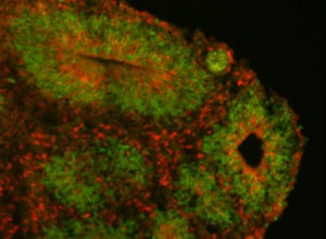 Researchers studied the effects of NOTCH2NL genes in cortical organoids grown from human embryonic stem cells (above) and rhesus monkey (below). Immunofluorescence staining shows markers for radial glia (green) and cortical neurons (red). (Images courtesy of Sofie Salama)
